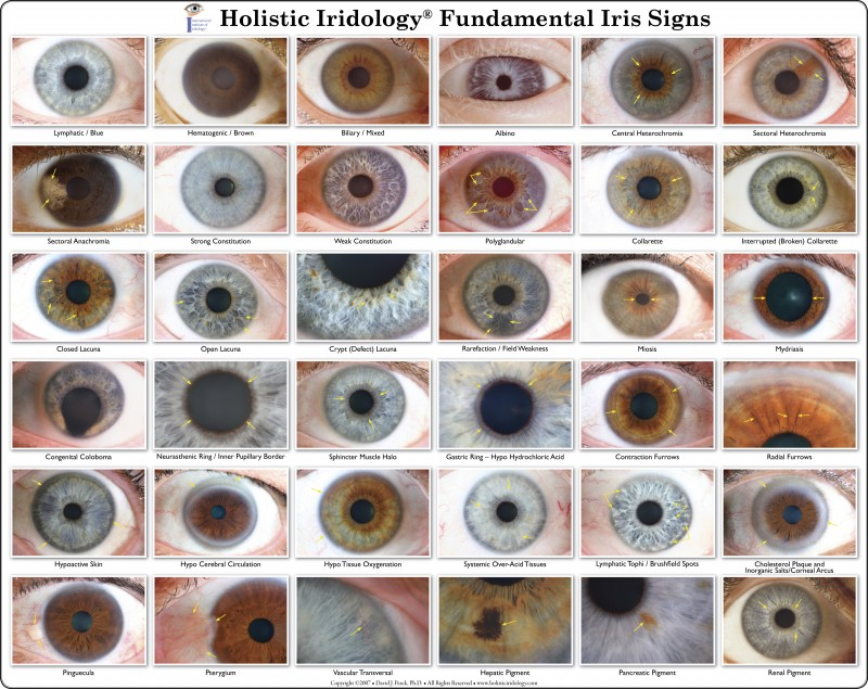 Charts « Dr Pesek's Holistic Iridology. Thrombosed Hemorrhoids Signs. Different Car Signs. Infant Home Treatment Signs. Dsm 5 Signs. Break Signs Of Stroke. Salmonella Bacteremia Signs. Oklahoma's Signs. Hyperkeratotic Signs